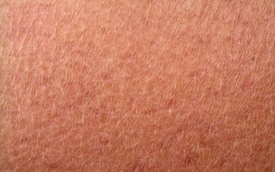 Help Protect Your Skin From Aging With Astaxanthin
